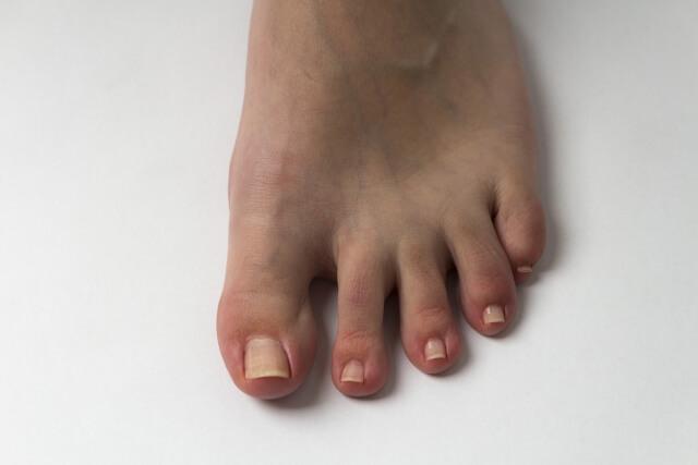 足の爪手入れ